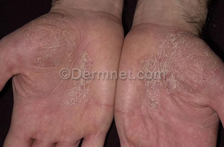 psoriasis arthritis psa mycoplasma magnesium vit d